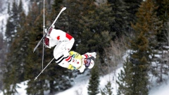 Canadian moguls star Mikael Kingsbury out four to six weeks with back injury Article Image 0